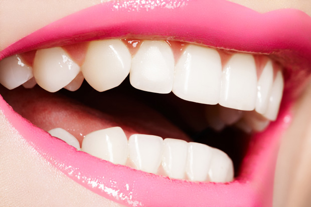 48789WideModern_WhiteTeeth_131023.jpg